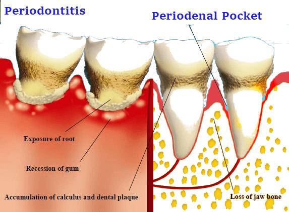 Periodenal pocket
