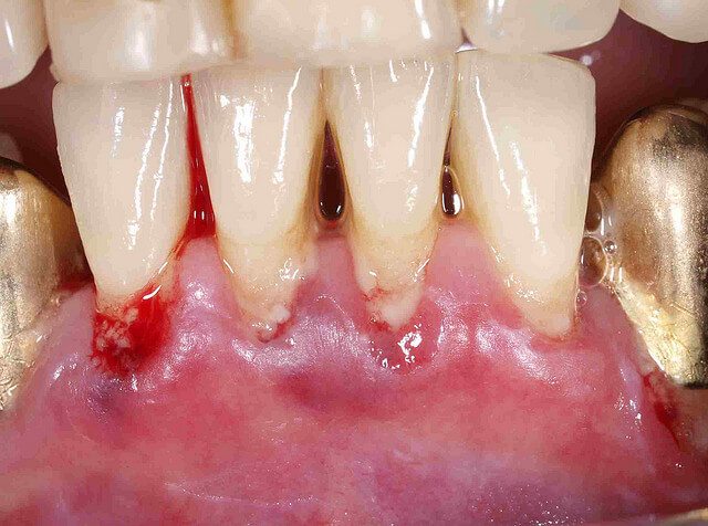Deep Cleaning Teeth Cost Scaling Amp Planning Advantage