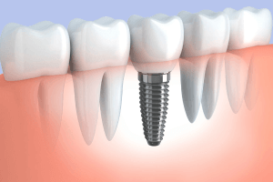 low-cost dental implants