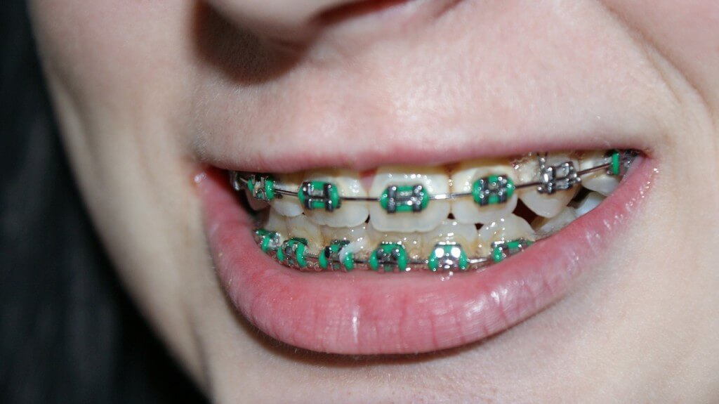 what affect do rubber bands have