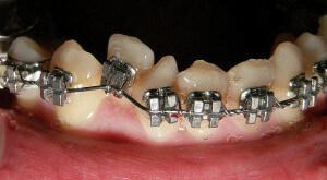 Dental disorders