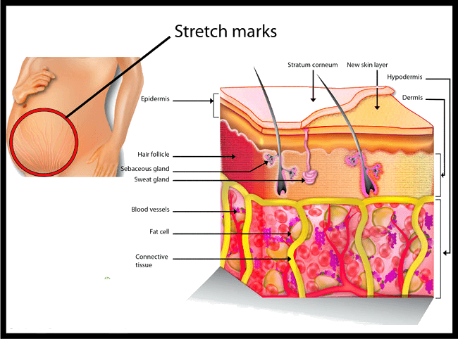 best way to get rid of stretch marks