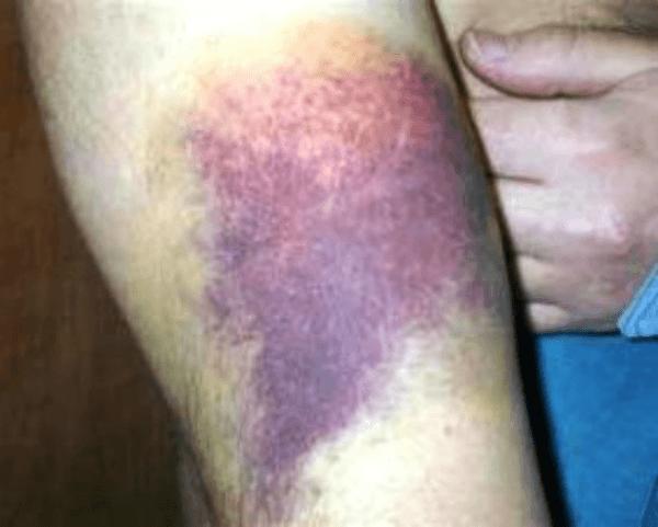 hematoma treatment arm