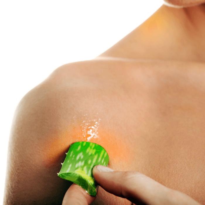 rid marks stretch naturally remove fast aloe vera gel di stretchmarks skin aloevera per tips super sono
