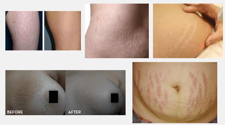 laser stretch mark removal