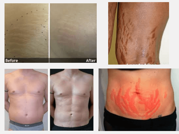 laser stretch mark removal before and after pictures