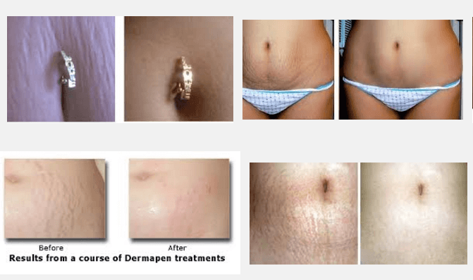 laser stretch mark removal before and after images