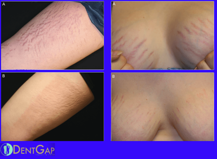 stretch mark laser removal before and after pictures