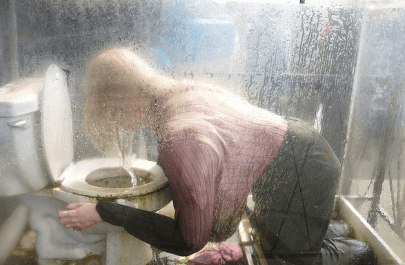vomiting and diarrhea