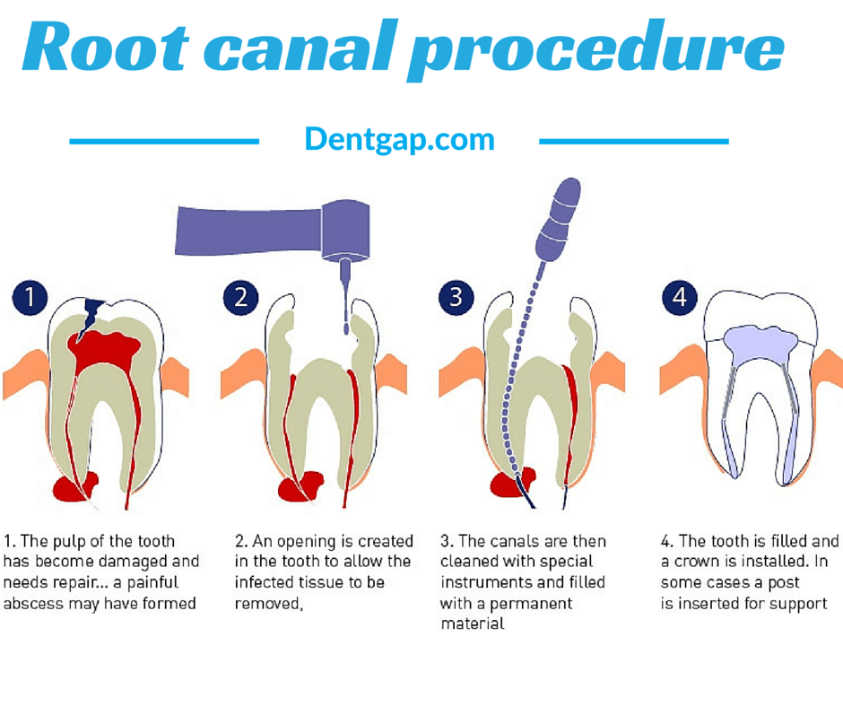 How Much is a Root Canal Cost