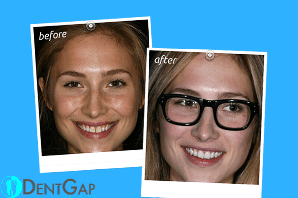 before-and-after-teeth-gap-bands