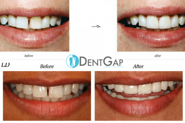 teeth-bands-before-and-after