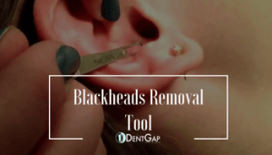 Blackheads Removal with blackhead extraction tool