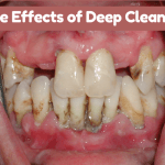 Side Effects of Deep Cleaning