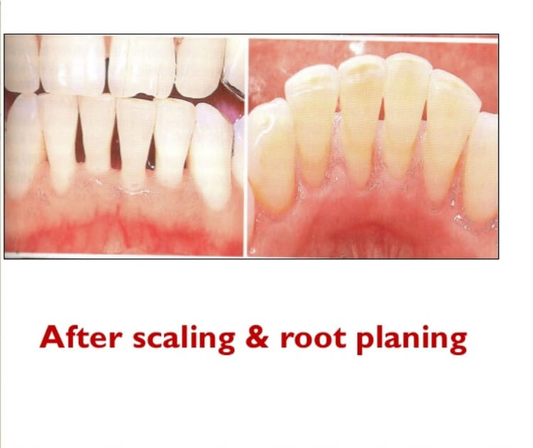 After scaling and root planing