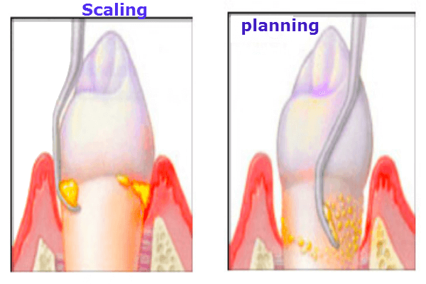 Deep Cleaning Teeth Cost Scaling And Planning