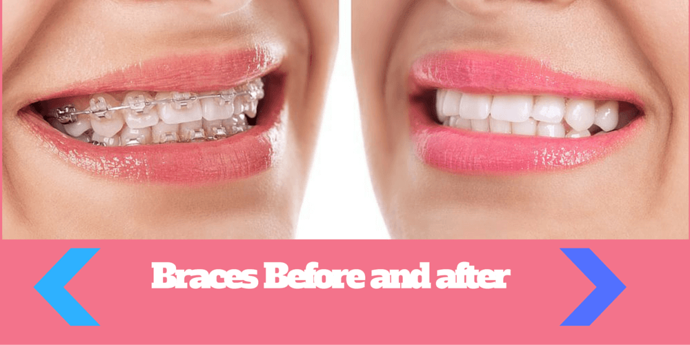 Braces Before And After 5 Facts You Should Know Before