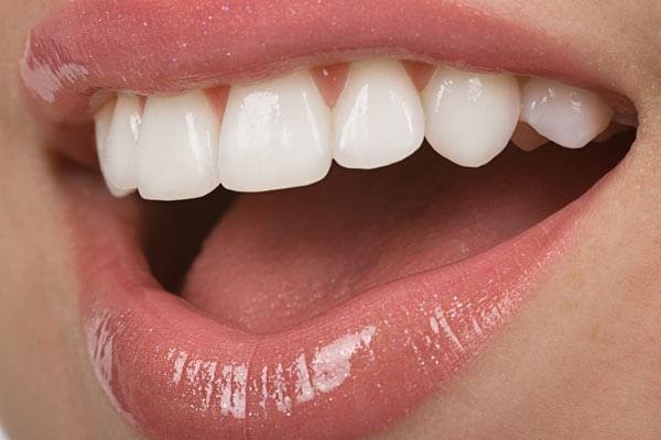 Veneers Before and After: pictures
