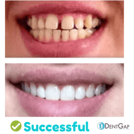 braces before and after gap