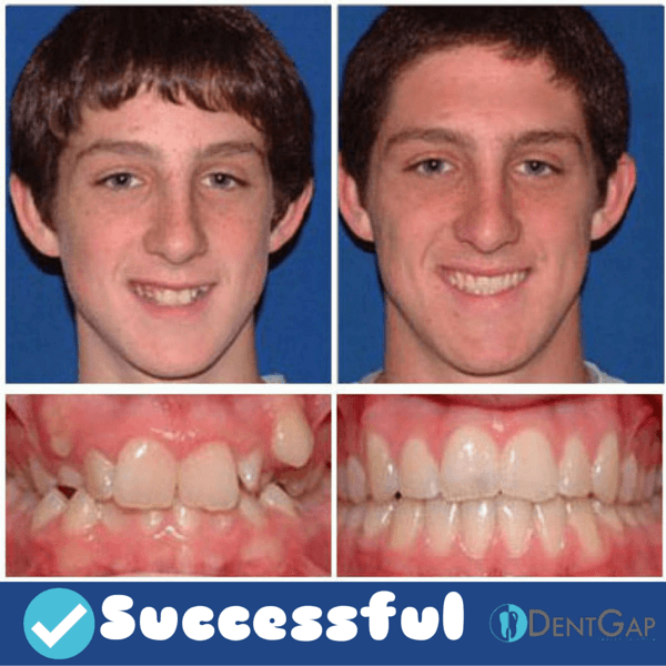 braces before and after images