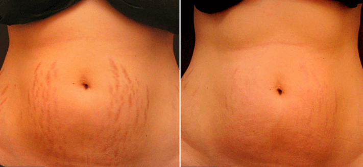 stretch marks before and after