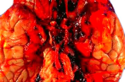 brain aneurysm survival rate