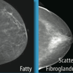 What does Scattered Fibroglandular Densities Mean