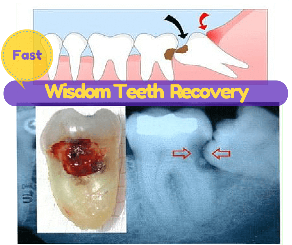 wisdom teeth recovery tip foods 1st 2nd 3rd day