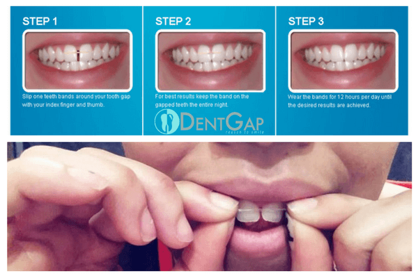 tooth-gap-bands-results