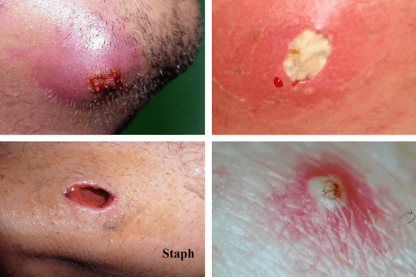 deep cyst which causes by ingrown hair on face and body